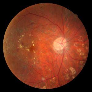 糖尿病黄斑浮腫 眼底写真