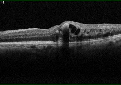 網膜静脈閉塞OCT画像